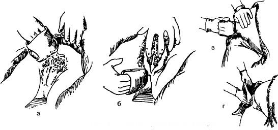 muzhskaya-intimnaya-gigiena-polovih-organov